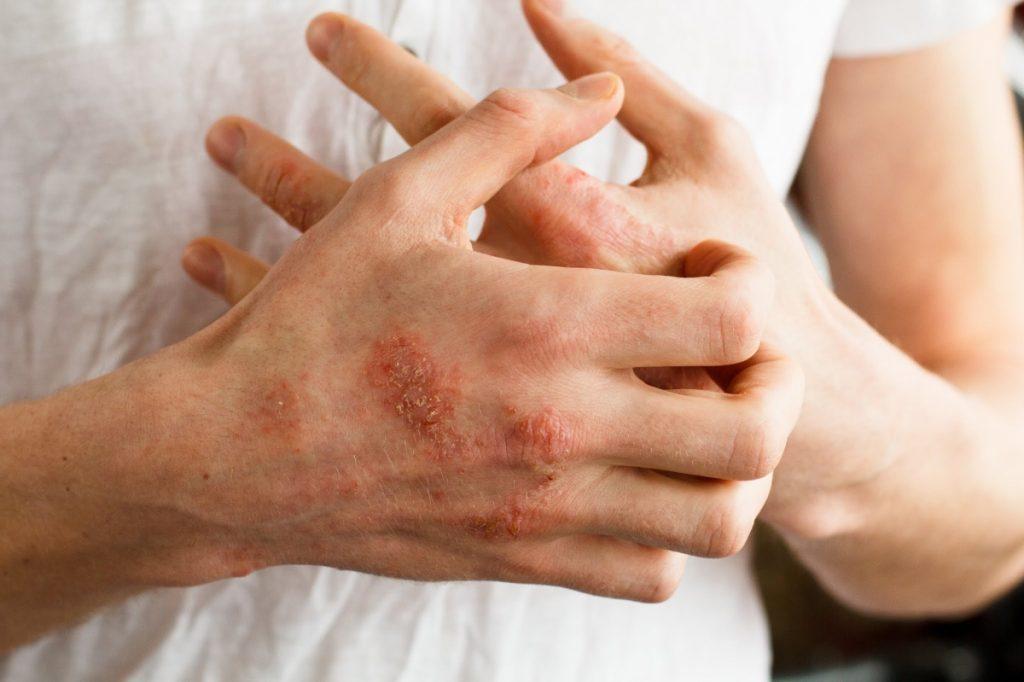 latex allergic reaction