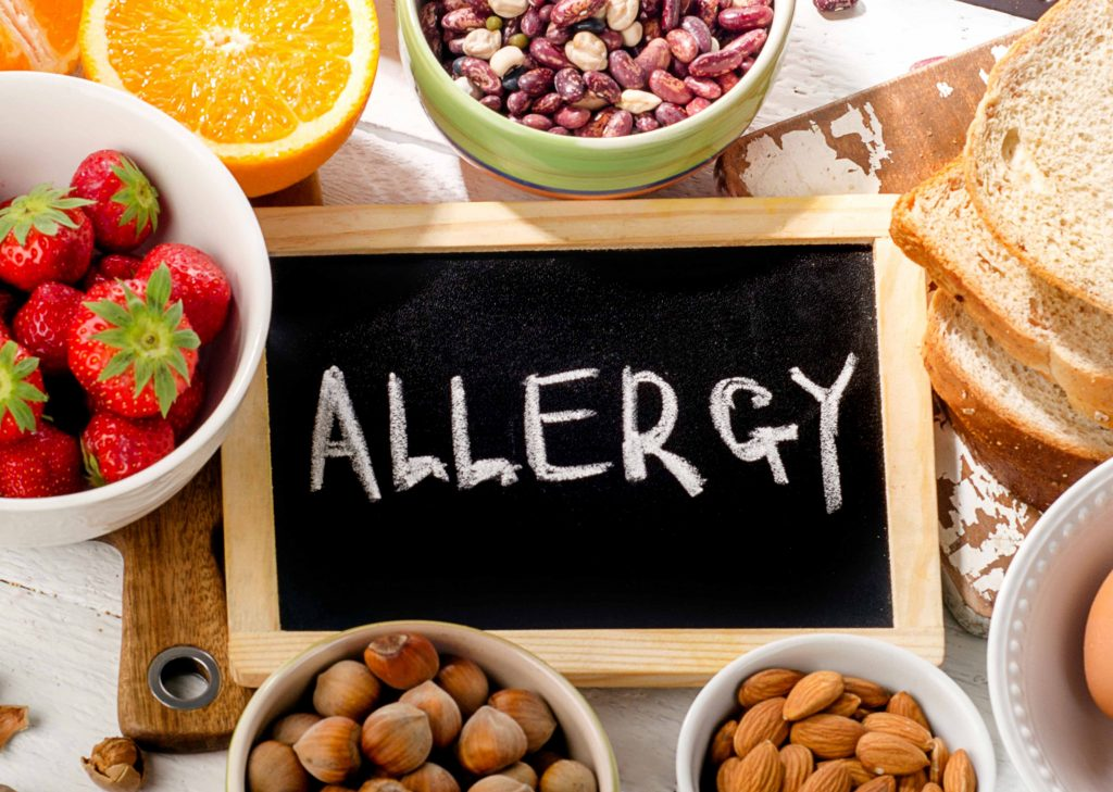 about food allergies